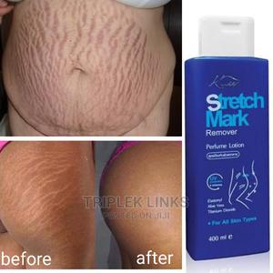 Anti Stretch Mark and Anti Aging Lotion | Skin Care for sale in Lagos State, Amuwo-Odofin