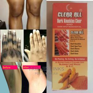 Clear All Dark Knuckle, Knee, Armpit, Elbow | Skin Care for sale in Lagos State, Ojo
