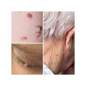 Skin Tag, Mole Genital Wart, Foot Corn Removal 10ml | Skin Care for sale in Lagos State, Alimosho