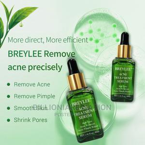 Breylee Acne Treatment Serum for Pimples and Acne | Bath & Body for sale in Lagos State, Ikeja