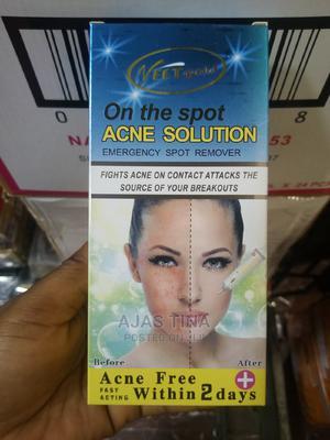 Veet Gold Acne Solution | Skin Care for sale in Lagos State, Amuwo-Odofin