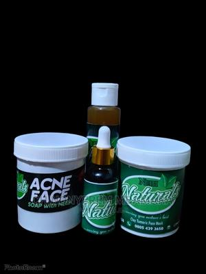 Acne Treatment Set | Skin Care for sale in Lagos State, Ojodu